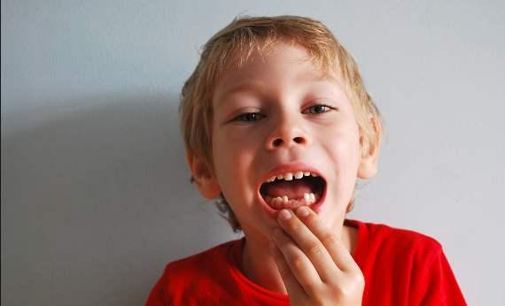 Arti Mimpi Gigi Patah/Copot Menurut Primbon Dan Psikolog