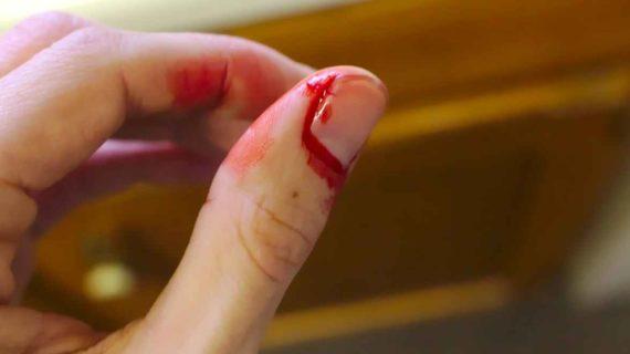 Melihat Tangan Berdarah