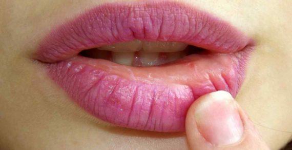 Cara Menghilangkan Bau Nafas