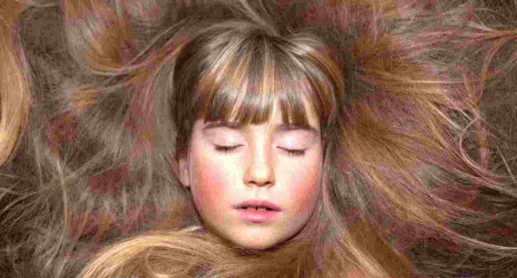 Mimpi Rambut Botak